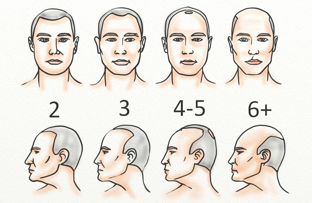 Stage II Is The Official Start Of A Receding Hairline (as Stage I Is  Considered Maturing) And It Can Go All The Way To Stage VII.
