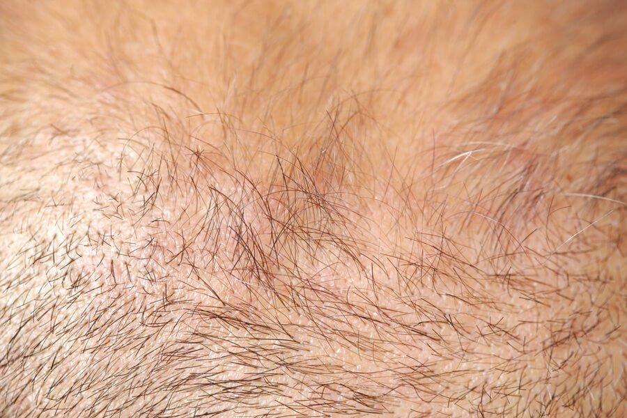 Vellus Hair To Terminal Hair 3 Ways To Rebirth Hair Follicles