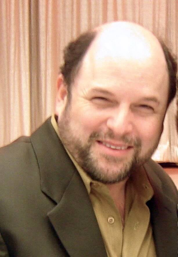 Jason Alexander with a stage 7 hairline