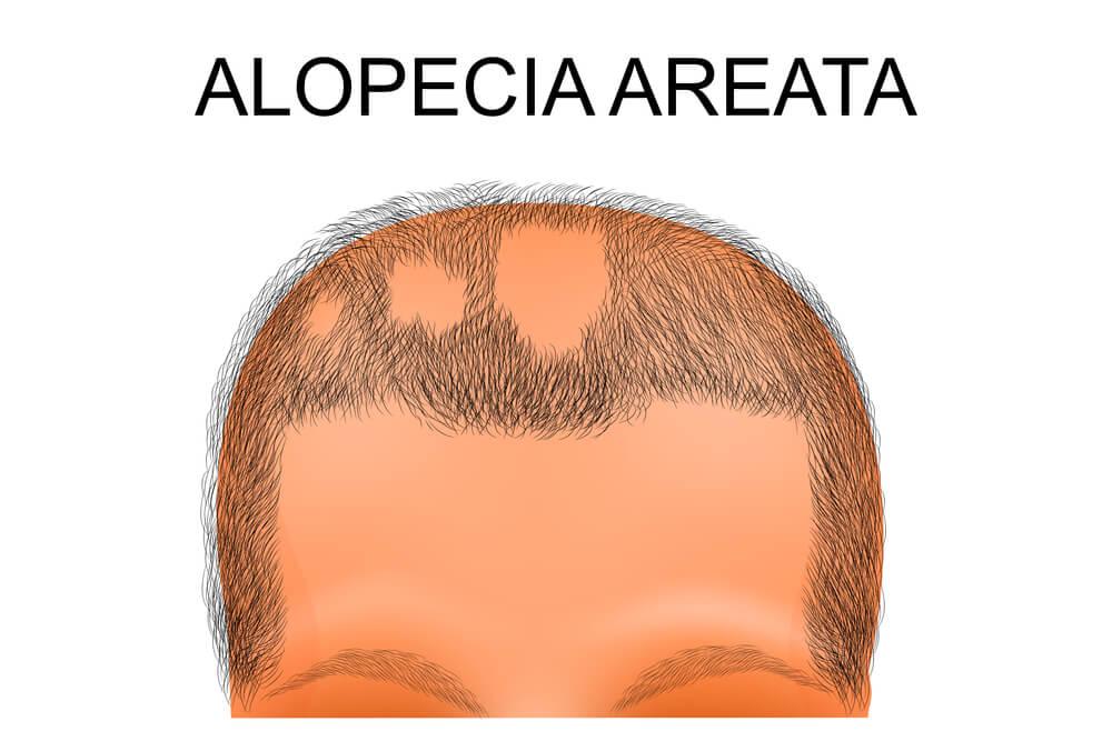 Alopecia areata's patchy hair loss pattern