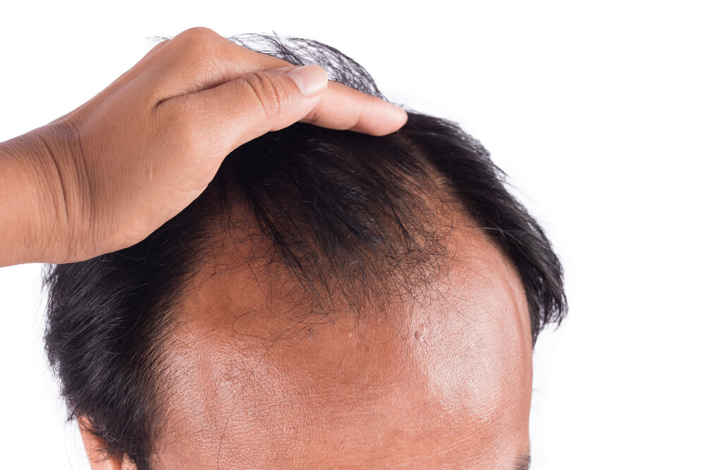 A balding Asian man