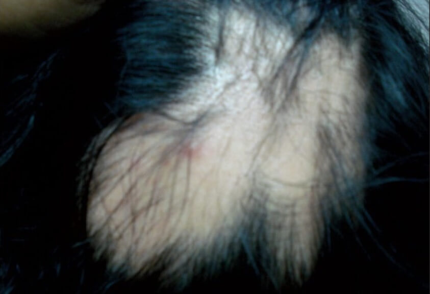 A female presenting with alopecia areata