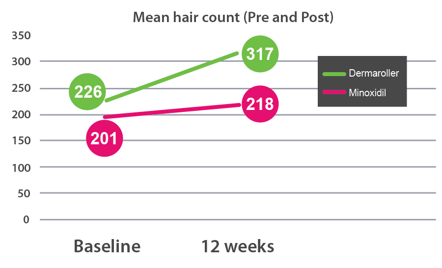 as you can see from the graph above, using a dermaroller increase mean hair  count 5x more effectively than minoxidil alone after 12 weeks