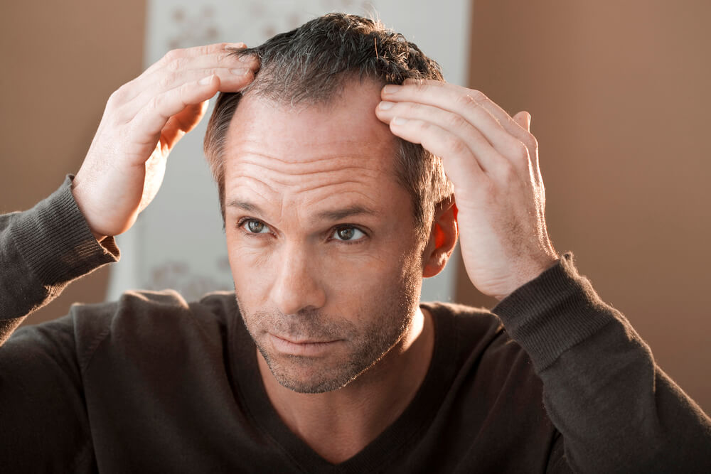 A man with receding hairline touching his scalp