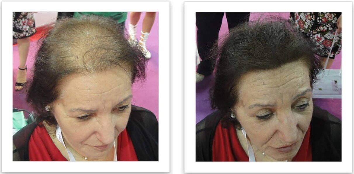 A Caboki female before and after