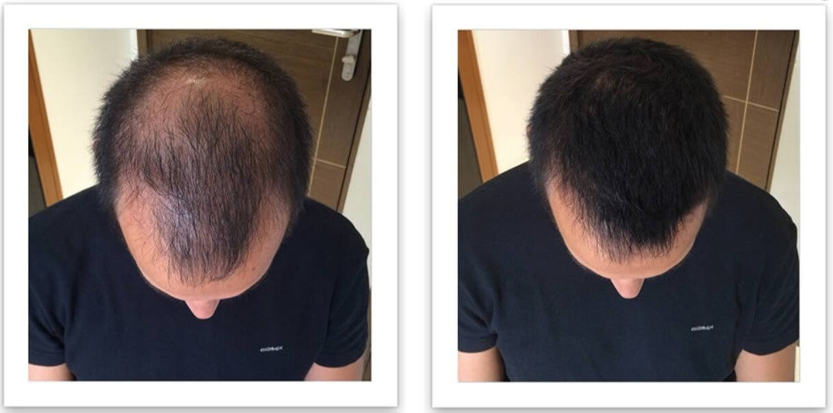 A Caboki male before and after