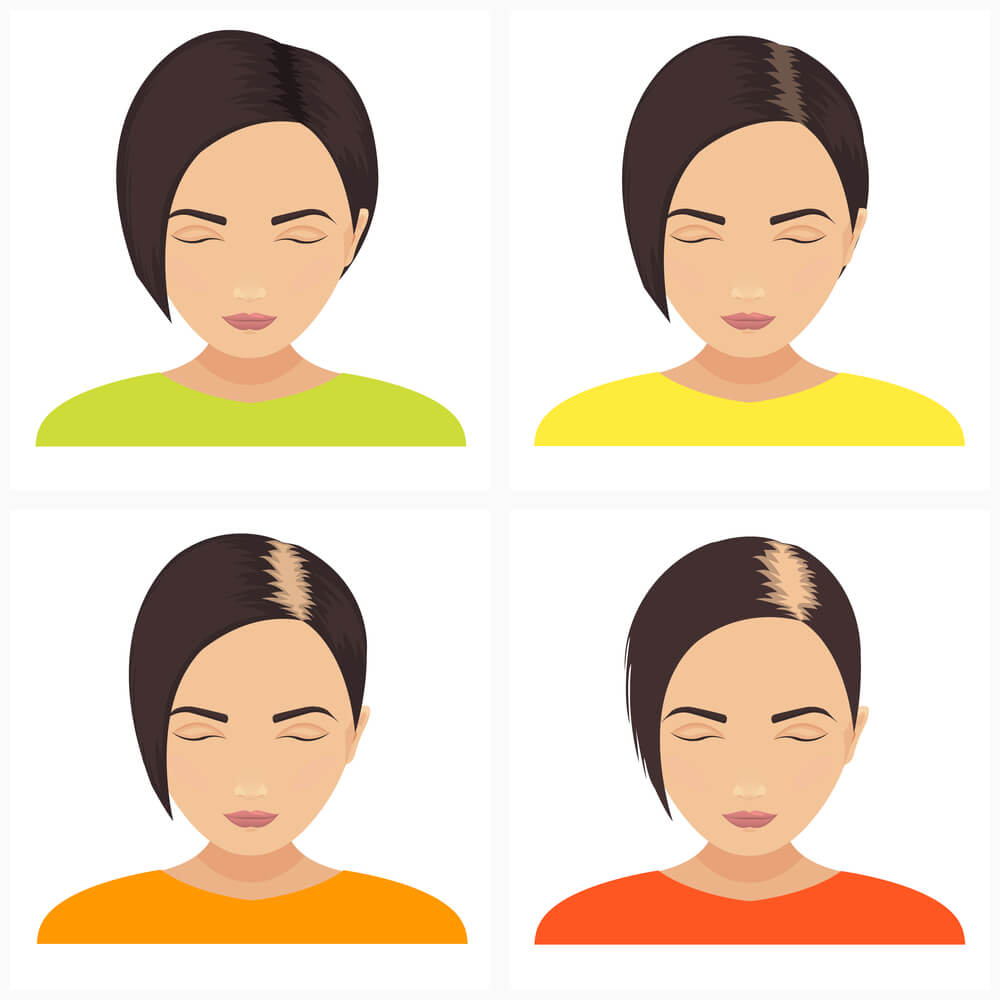 The typical presentation of female pattern hair loss