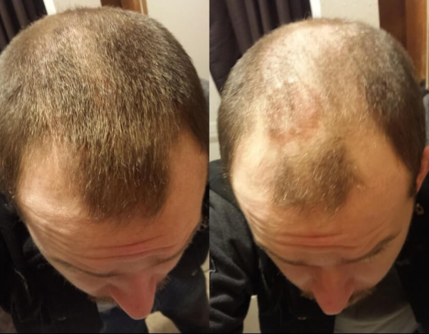 A Toppik male before and after