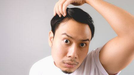An Asian man inspecting his hairline