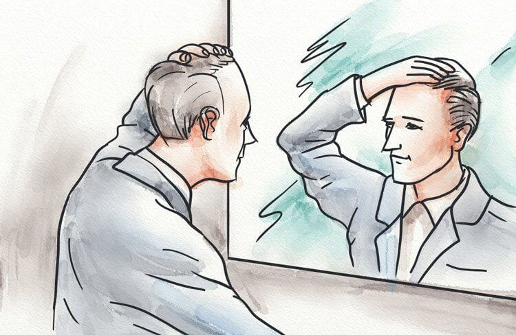 A man examining his receding hairline in the mirror