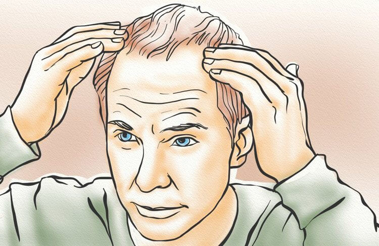 A man touching his receding hairline