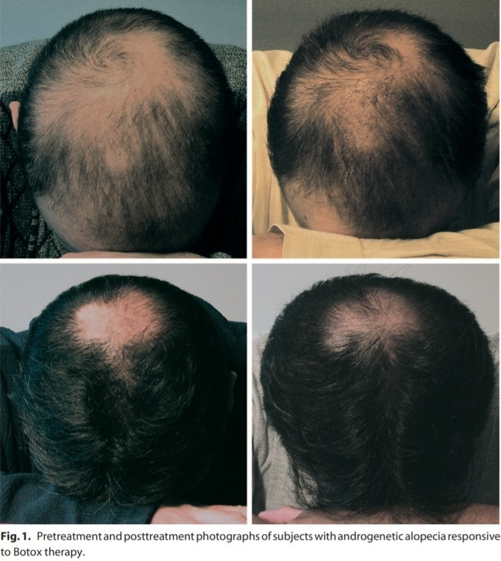 Botox Injections for Hair Growth in Men - Hairguard
