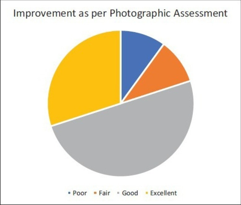 Improvement as per photographic assessment in botox study