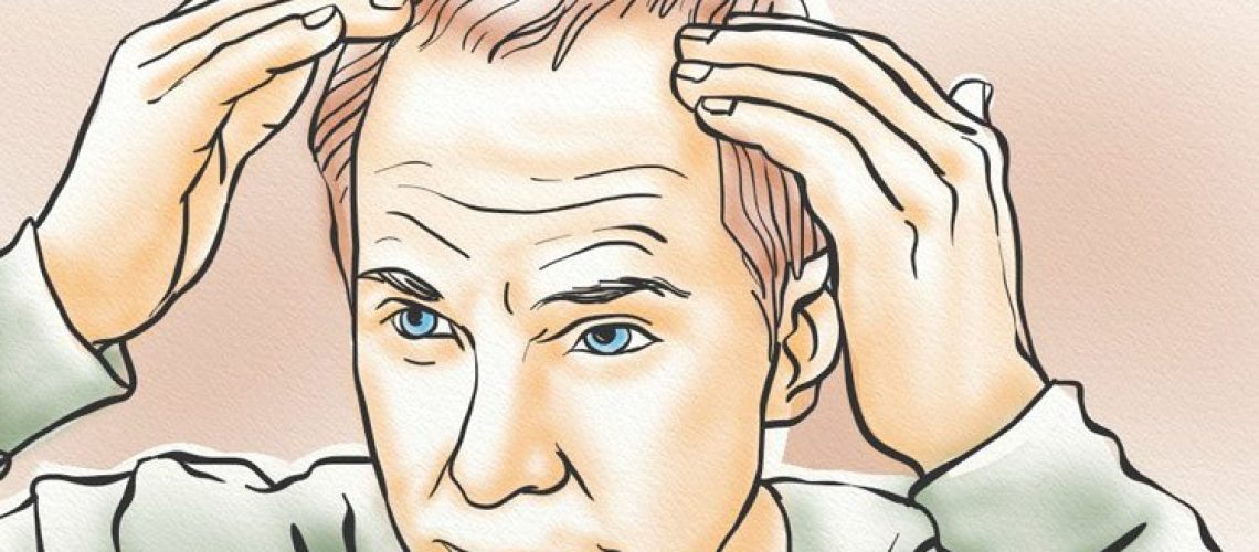 Scalp calcification reduces blood flow to hair follicles which causes miniaturization and eventually follicle death.