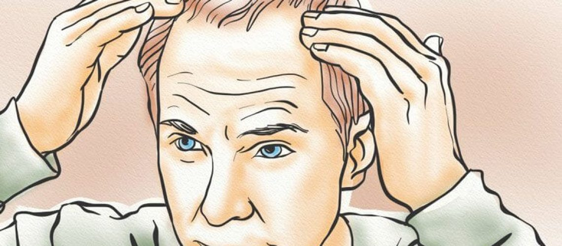A man touching his receding hairline and wondering if WAY-316606 is the hair loss cure he's been looking for